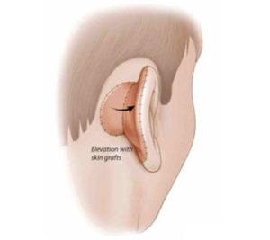 protesi-2