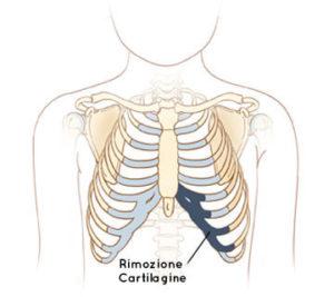 rimozione-cartilagine